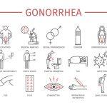 淋病に感染したときの特徴と治療法
